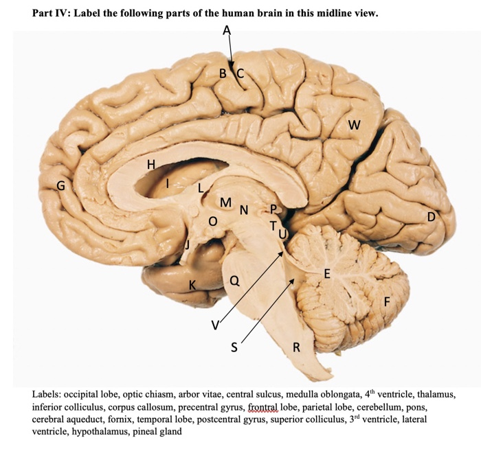 Solved: Part IV: Label The Following Parts Of The Human Br ...